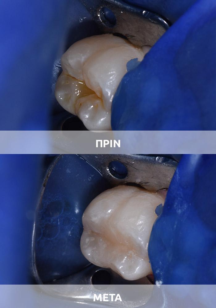 Αισθητική οδοντιατρική 2